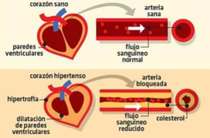 Corazon - Nuestros colaboradores de Banplus se tomaron la tensión arterial en serio